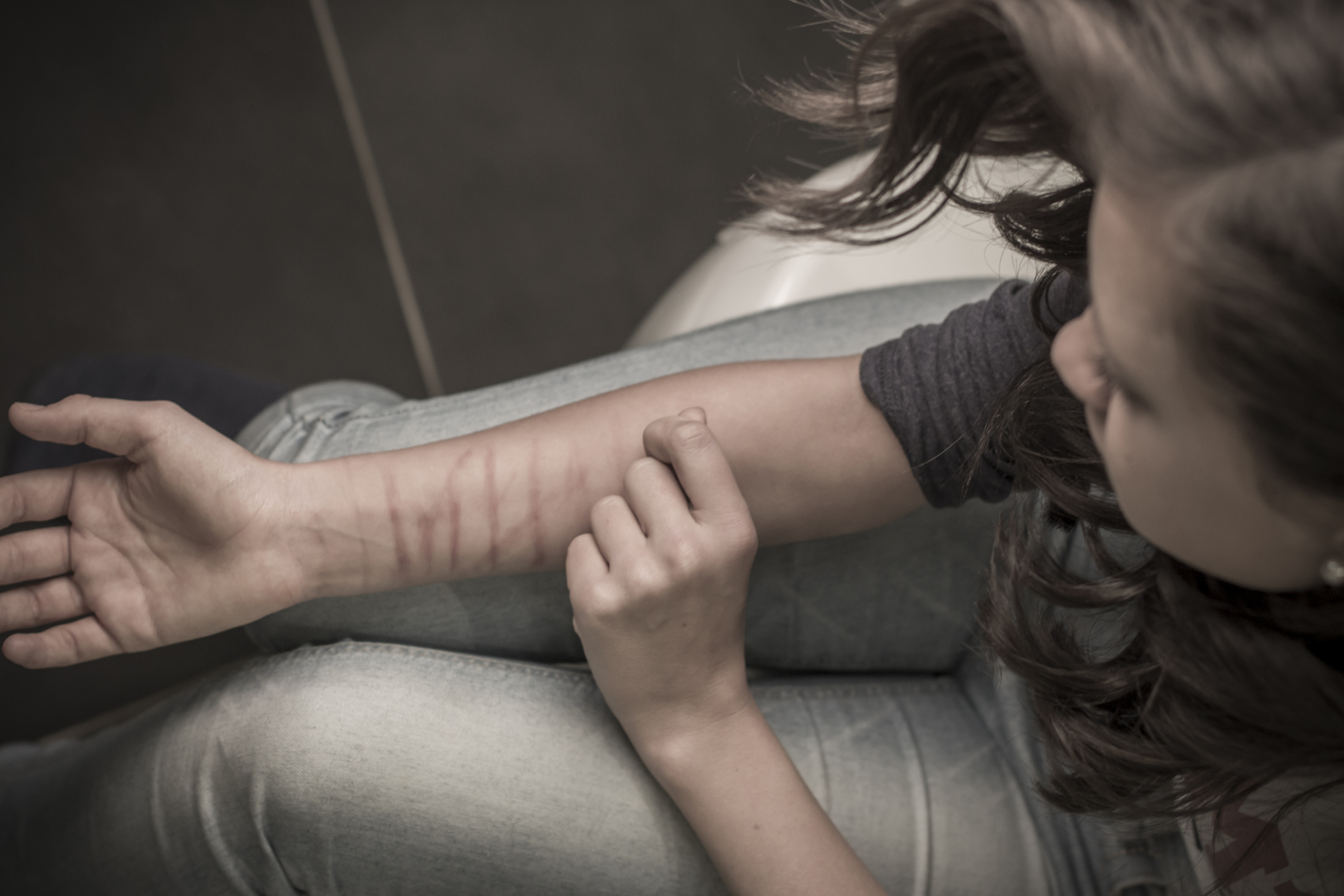 Self-Injury Common Among Transgender Youth
